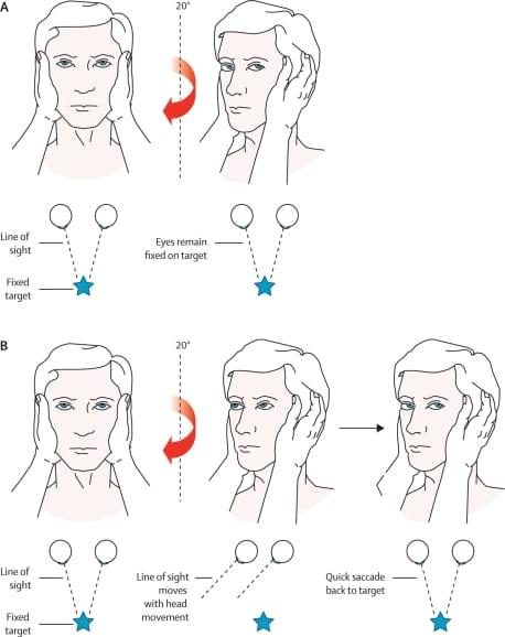 The Clinical Differentiation of Cerebellar Infarction from Common Vertigo Syndromes