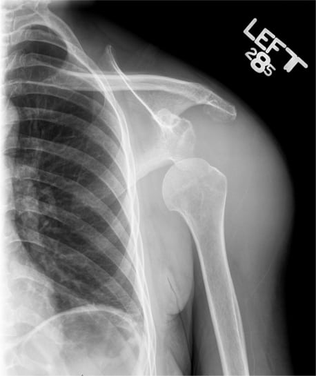Non-traumatic Shoulder Dislocation