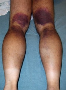 Figure 1. The pattern of ecchymoses seen over the patient's posterior legs.