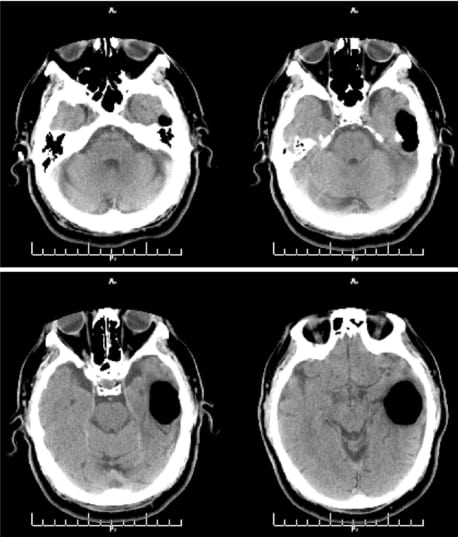 Spontaneous Otogenic Intracerebral Pneumocephalus