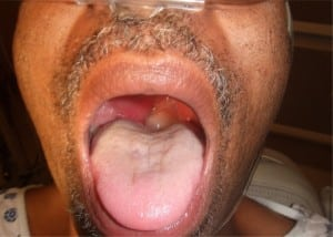 Figure 1. Oropharynx of patient showing hydropic uvula deviated leftward by right peritonsillar abscess.