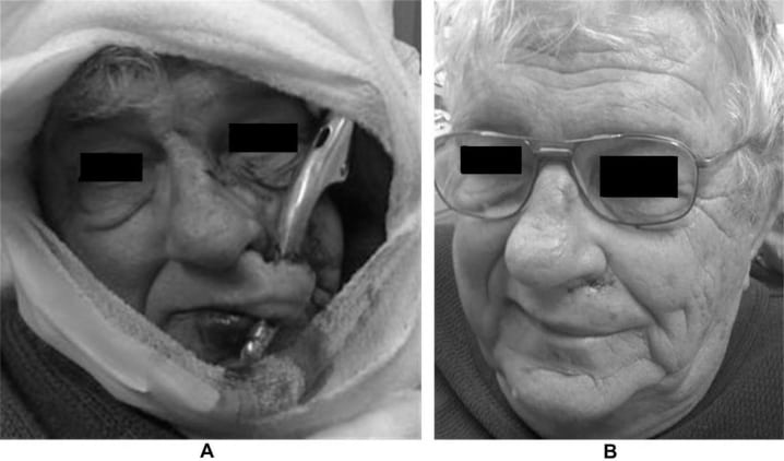 An Unusual Facial Impalement Injury in a 75-Year-Old Male