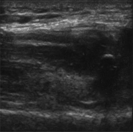 Ultrasound Diagnosis of Bilateral Quadriceps Tendon Rupture After Statin Use