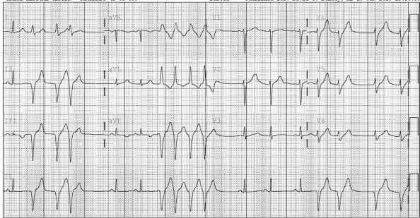Idiopathic Ventricular Tachycardia: Belhassen Type