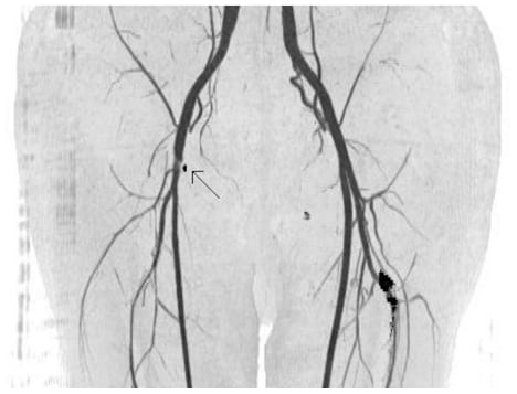Iatrogenic Claudication from a Vascular Closure Device after Cardiac Catheterization