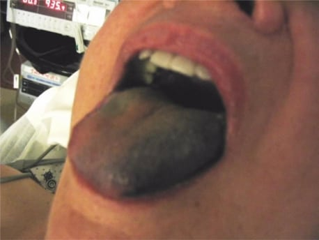 Lingual Ischemia from Prolonged Insertion of a Fastrach Laryngeal Mask Airway
