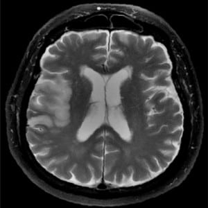 Figure 10. Right middle cerebral artery infarction. Fast spin echo T2-weighted fat suppressed image demonstrates increased signal intensity and effacement of the right temporal lobe, consistent with sub-acute infarct.