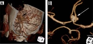 Figure 7. Anterior communicating artery (ACoA) aneurysm. (A) Cerebal computed tomography angiogram (CTA) in three-dimensional projection with skull surface overlay demonstrates an anterior communicating artery aneurysm. (B) Dedicated images from CTA of the Circle of Willis isolates the aneurysm (arrow).