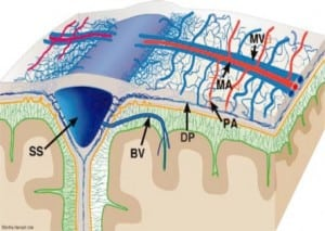 Figure 2b. Three dimensional view of the dural anatomy. The meningeal arteries (MA) and veins (MV) are superficially located, while the dural venous plexus (DP) is located within the inner portion of the dura (intradural). The dural plexus is particularly dense parasagittally, where it connects to the sagittal sinus independently of the cortical BV. From Mack, et. al. 2009. BV, bridging vein; MA, meningeal artery; MV, meningeal vein; PA, penetrating arteriole extending to inner dural plexus; DP dural plexus; SS, superior sagittal sinus. Reproduced with permission Mack et al, Pediatr Radiol. 2009; 39:200–1028 Copyright Springer, 2009.