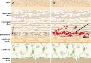 Figure 5a. Dural anatomy and early intradural collection of blood.