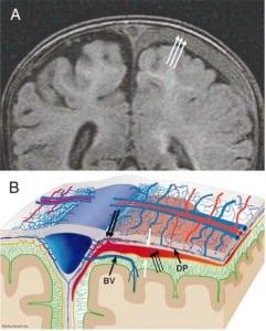 Figure 5c. Left subdural compartment hemorrhage.