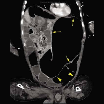 Massive Gastric Distension from Chronic Intestinal Pseudo-Obstruction