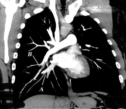 More than Just another Pulmonary Embolism