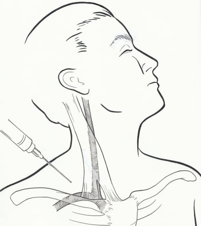 Supraclavicular Subclavian Vein Catheterization: The Forgotten Central Line