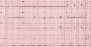 Figure 1. 12-lead ECG from a 54-year-old male with syncope and hypotension.