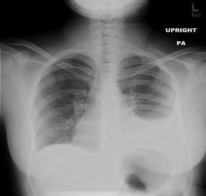 CSF Hydrothorax