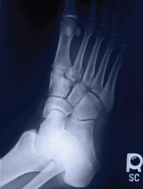 Lisfranc Fracture-Dislocation