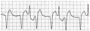 Figure 5a Bidirectional ventricular tachycardia due to digitalis toxicity. From: Piccini J, Zaas A. Images of Osler: Cases from the Osler Medical Service at Johns Hopkins University.