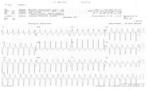 Figure 6 Example of an unusual WCT known as Idiopathic (benign) Ventricular Tachycardia. This is caused by a re-entry loop in the apex of the LV, resulting in the left superior axis and RBBB pattern. Also called Left Ventricular Tachycardia, it often responds to Verapamil. (Note -- CCBs should not be used in WCTs unless recommended by a cardiologist or electrophysiologist.)