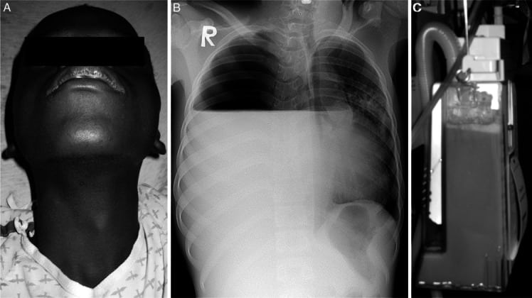 Pneumothorax in Liberia: Complications of Tuberculosis ...