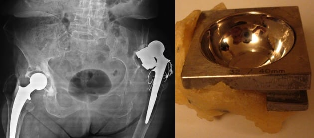 Asymptomatic Chronic Dislocation of a Cemented Total Hip Prosthesis