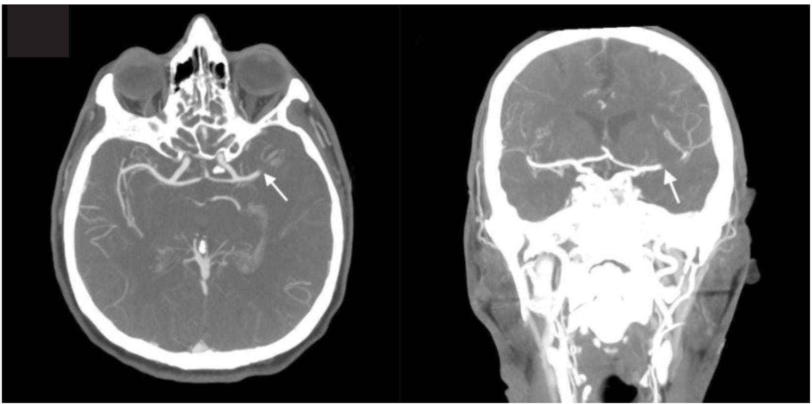 Usefulness of Computed Tomography Perfusion in Treatment of an Acute Stroke Patient with Unknown Time of Symptom Onset