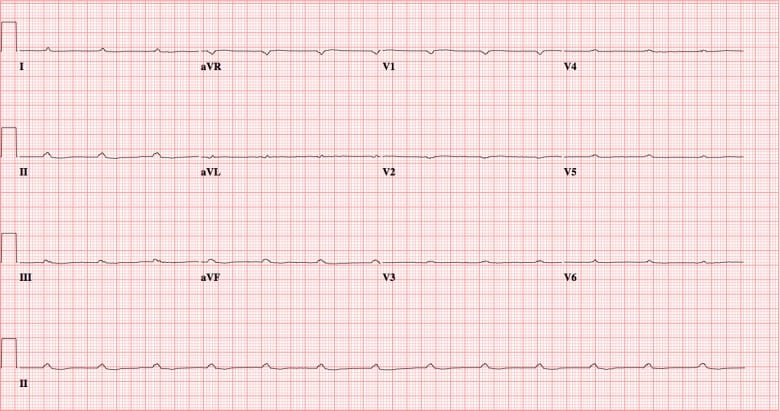 Complete Ventricular Asystole in a Patient with Altered Mental Status