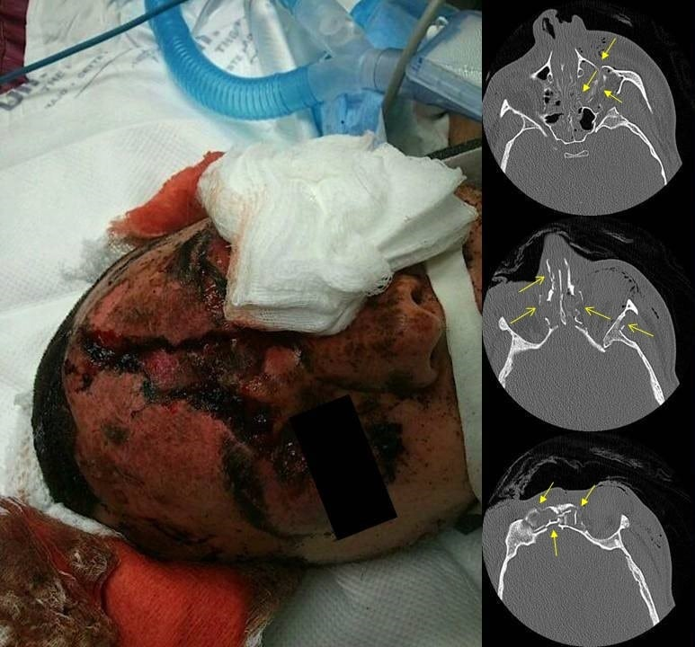 Facial Firework Injury A Case Series The Western