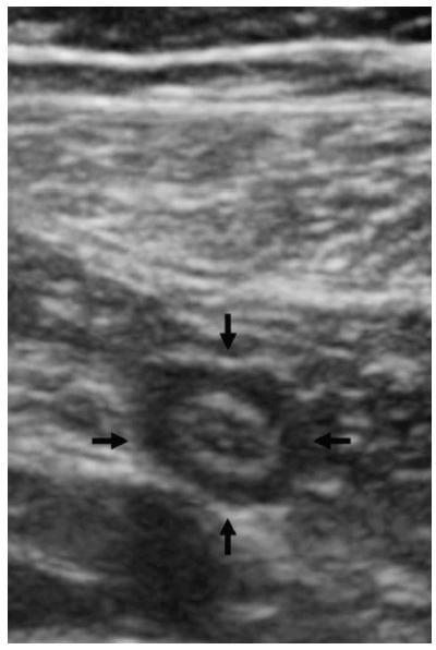 False Positive Appendicitis on Bedside Ultrasound