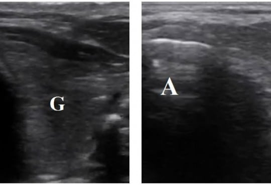 Accuracy of a Novel Ultrasound Technique for Confirmation  of Endotracheal Intubation by Expert  and Novice Emergency Physicians