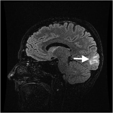 Posterior Reversible Encephalopathy Syndrome in the Emergency Department: Case Series and Literature Review