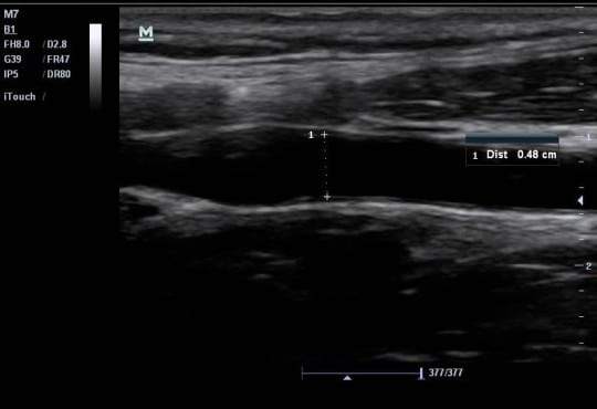 Can Emergency Physicians Perform Common Carotid Doppler Flow Measurements to Assess Volume Responsiveness?