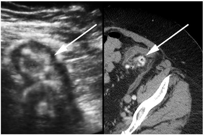 elderly woman  abdominal pain bedside ultrasound diagnosis  diverticulitis  western