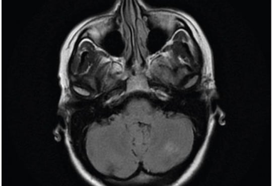 Posterior Reversible Encephalopathy Syndrome (PRES) After Acute Pancreatitis