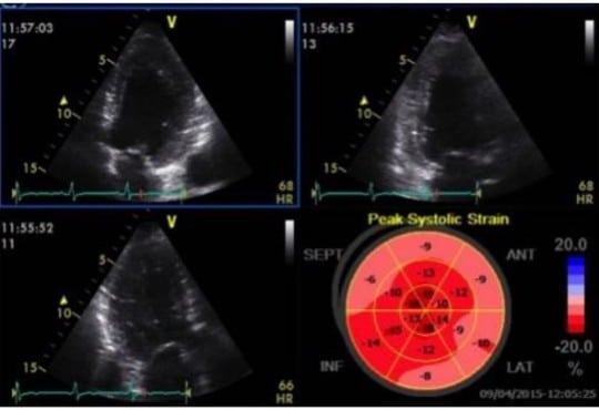 Strain Echocardiography in Acute Cardiovascular Diseases