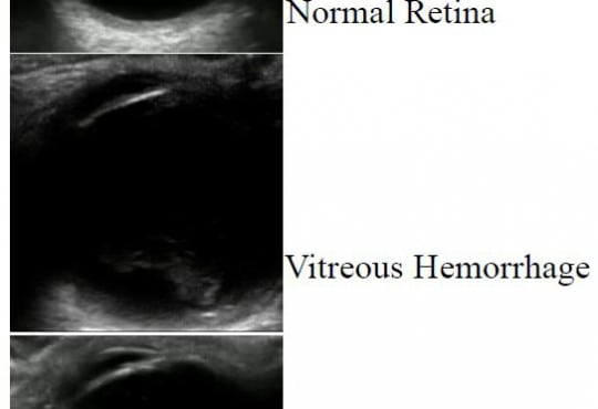 Retrospective Review of Ocular Point-of-Care Ultrasound for Detection of Retinal Detachment