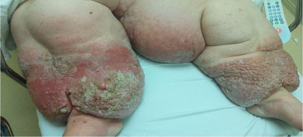 Papillomatosis cutis carcinoides, CONGRES_DERMATO_ Papillomatosis cutis