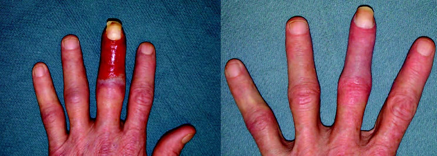 Allergic Dermatitis due to Topical Antibiotics