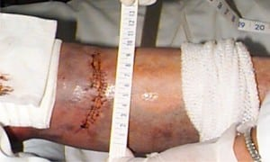 Figure 3. Left lower extremity laceration due to contact with car alarm LED