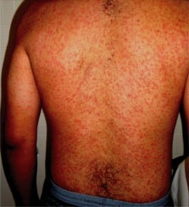 Figure. Diffuse rash consisting of multiple, small, erythematous, and confluent macules.