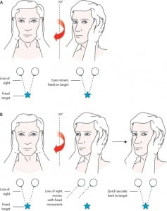 Figure 1. Head impulse test. A: The right ear has intact peripheral vestibular function. When the head is turned to the right, the vestibulo-ocular reflex moves the eyes to maintain visual fixation. B: The right ear now has impaired vestibular function. When the head is turned to the right, the eyes move with it, breaking visual fixation, and a refixation saccade is seen as the eyes dart back to the examiner's face. This indicates a peripheral vestibular disorder on the right side.