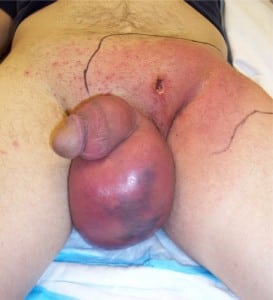 Figure. A draining lesion in his left inguinal region with surrounding induration and cellulitis extending onto his perineum with enlarged, edematous scrotum.