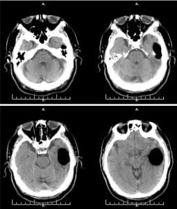 Figure. Computed tomographic image showing large collection of air in anterior portion of the left middle cranial fossa consistent with spontaneous otogenic intracerebral pneumocephalus.
