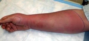 Figure. Right extremity rash