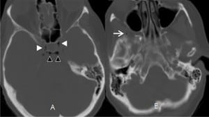 Figure 3. (Case 3). Axial cranial computed tomography through the sella region of an 56-year-old male who presented to the emergency department with the chief complaint of fall after feeling a loss of control of his body. Air is seen in bilateral cavernous sinus (white arrowheads, A), behind the dorsum sella (black arrowheads, A), and right superficial temporal veins (arrow, B).