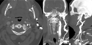 Figure 5. Axial (A), coronal (B) and sagittal (C) computed tomography reformatted views of soft tissue of the neck, showing contrast flow cephalad into the left internal (white arrowheads) and external jugular veins (black arrowheads) during a left upper extremity contrast injection for a head and neck computed tomography angiogram (white arrowheads: internal jugular, black arrowheads: external jugular).