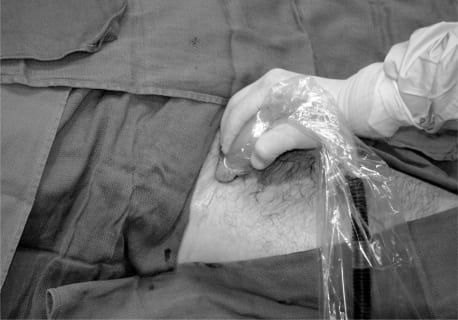Ultrasound-Guided Three-In-One Nerve Block for Femur Fractures