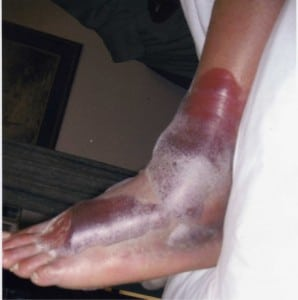 Figure 1. Left foot lateral view
