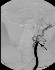Figure 16. Internal carotid artery occlusion. Frontal projection from left cerebral angiogram delineates complete occlusion of the left internal carotid artery to the level of the common carotid artery (arrow). Note the normal opacification of the external carotid artery branches.