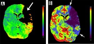 Figure 9. Left middle cerebral artery infarct. (A) Regional cerebral blood flow map from computed tomography perfusion shows a large perfusion defect in the left frontal and temporal lobes, evidenced by a lack of color display. (B) Regional cerebral blood volume map demonstrates a penumbra of decreased perfusion (indicated with arrows around blue areas) surrounding the defect (purple), indicating potentially reversible ischemia about the perfusion defect.